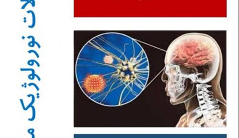 اختلالات نورولوژیک مرتبط با کرونا