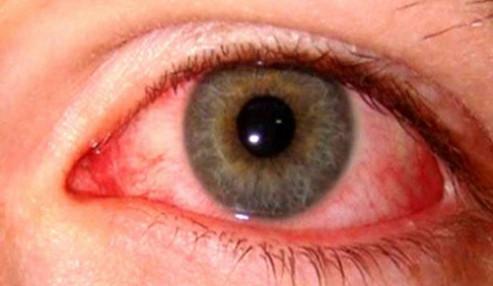وبینار علمی  تروماهای چشم و مراقبت های پرستاری 1