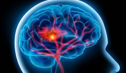وبینار علمی  سکته مغزی و درمانهای نوین